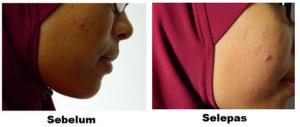 sebelum dan selepas ephyra review testimoni pengguna